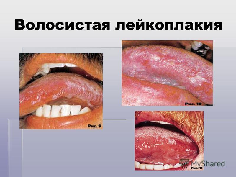 Волосистая лейкоплакия