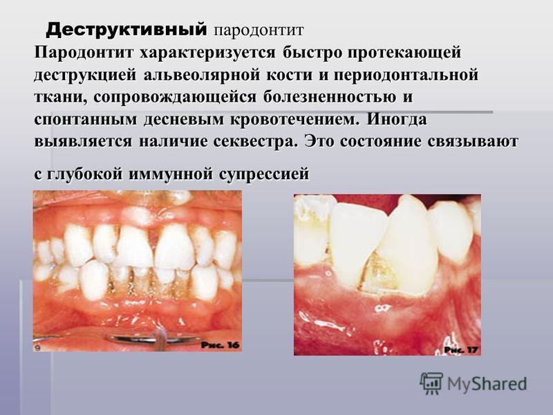 Деструктивный пародонтит Пародонтит характеризуется быстро протекающей деструкцией альвеолярной кости и периодонтальной ткани, сопровождающейся болезненностью и спонтанным десневым кровотечением. Иногда выявляется наличие секвестра. Это состояние свя
