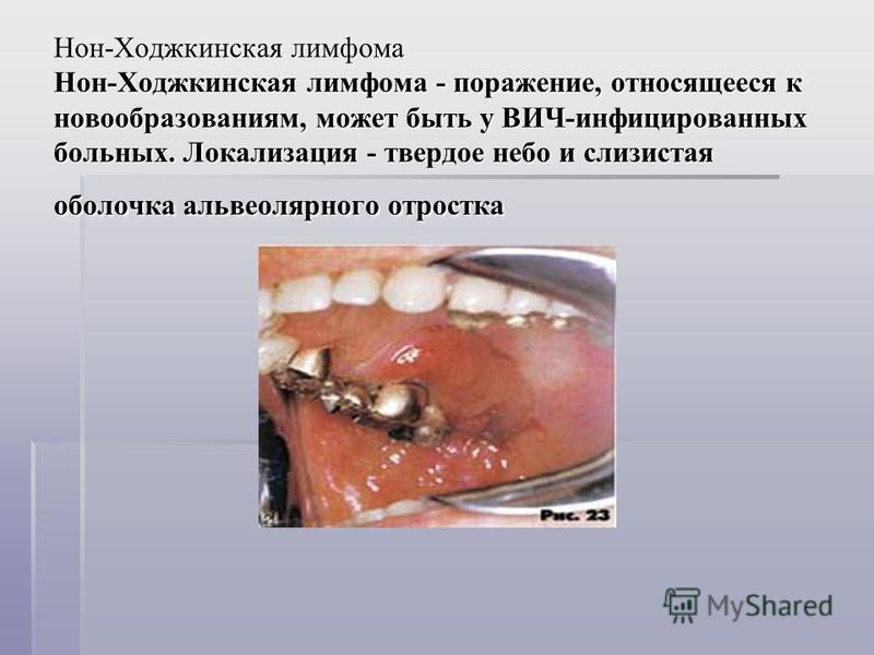 Нон-Ходжкинская лимфома Нон-Ходжкинская лимфома - поражение, относящееся к новообразованиям, может быть у ВИЧ-инфицированных больных. Локализация - твердое небо и слизистая оболочка альвеолярного отростка