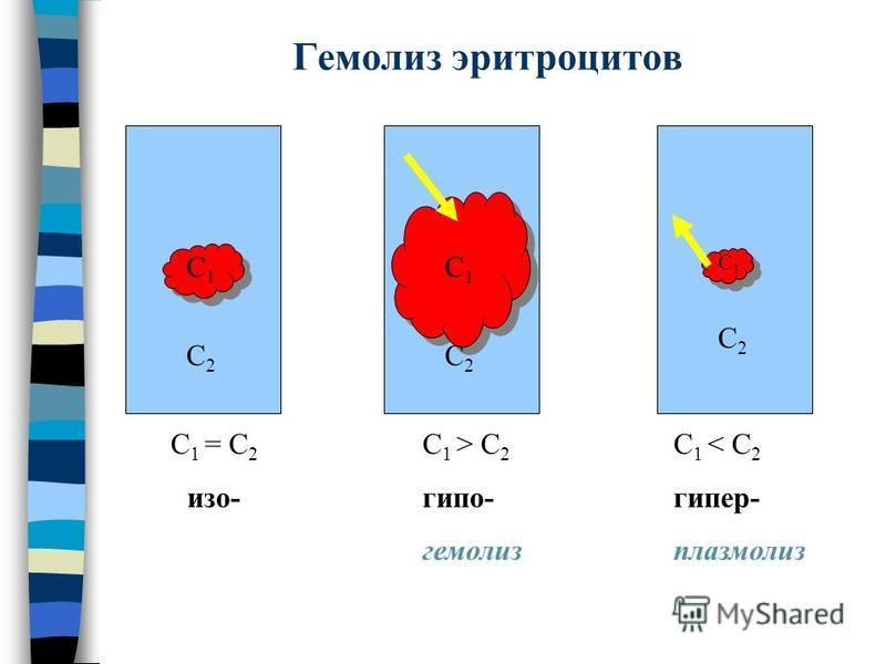 Гемолиз эритроцитов С1С2С1С2 С1С2С1С2 С1С2С1С2 С 1 = С 2 изо- С 1 > С 2 гипо- гемолиз С 1 < С 2 гипер- плазмолиз