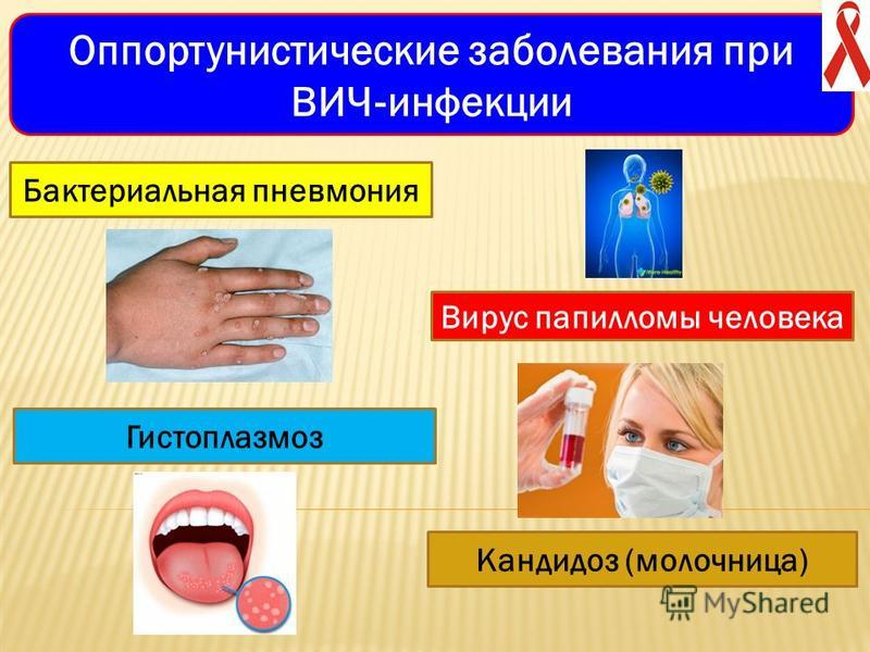 Оппортунистические заболевания при ВИЧ инфекции Бактериальная пневмония Вирус папилломы человека Гистоплазмоз Кандидоз (молочница)