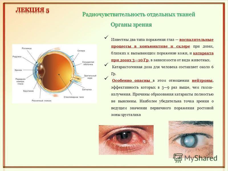 Радиочувствительность отдельных тканей Органы зрения Известны два типа поражения глаз воспалительные процессы в конъюнктиве и склере при дозах, близких к вызывающим поражение кожи, и катаракта при дозах 310 Гр, в зависимости от вида животных. Катарак