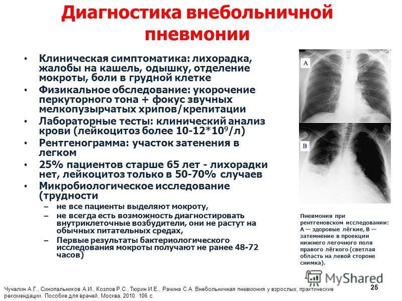 Диагностика внебольничной пневмонии Клиническая симптоматика: лихорадка, жалобы на кашель, одышку, отделение мокроты, боли в грудной клетке Физикальное обследование: укорочение перкуторного тона + фокус звучных мелкопузырчатых хрипов/крепитации Лабор