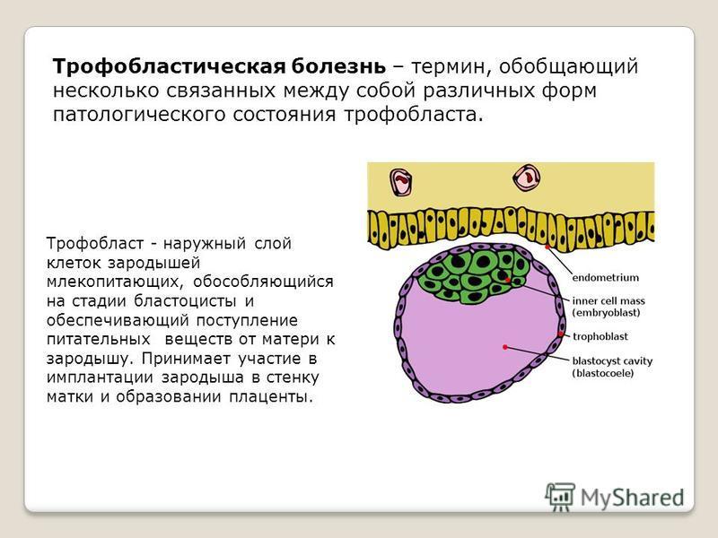 Трофобластическая болезнь – термин, обобщающий несколько связанных между собой различных форм патологического состояния трофобласта. Трофобласт - наружный слой клеток зародышей млекопитающих, обособляющийся на стадии бластоцисты и обеспечивающий пост