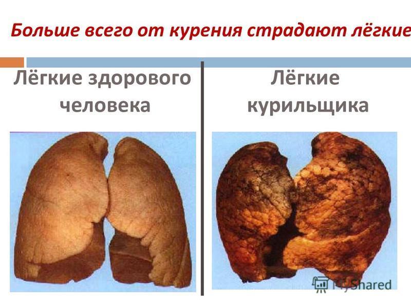 Лёгкие здорового человека Лёгкие курильщика Больше всего от курения страдают лёгкие.