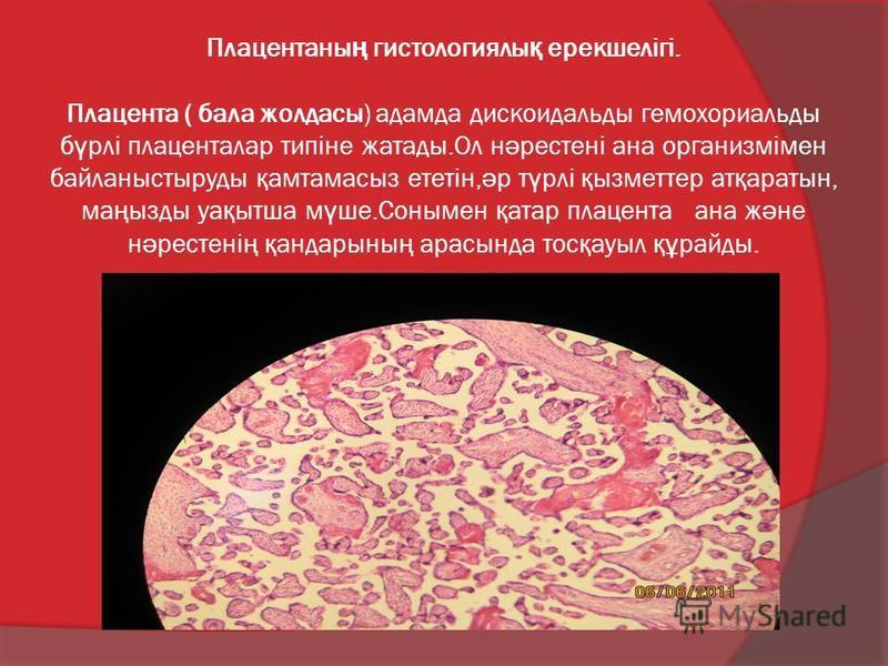 Плацентаны ң гистологиялы қ ерекшелігі. Плацента ( бала жолдасы) адамда дискоидальды гемохориальды б ү рлі плаценталар типіне жатады.Ол н ә рестені ана организмімен байланыстыруды қ амтамасыз ететін, ә р т ү рлі қ ызметтер ат қ аратын, ма ң ызды уа қ