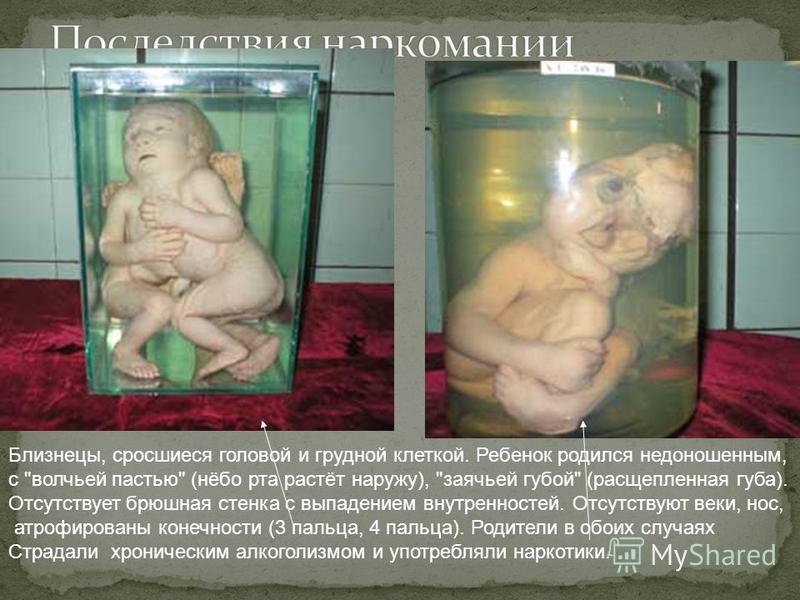 Близнецы, сросшиеся головой и грудной клеткой. Ребенок родился недоношенным, с