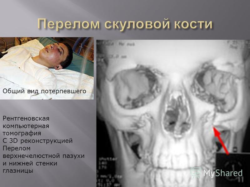 Рентгеновская компьютерная томография С 3D реконструкцией Перелом верхнечелюстной пазухи и нижней стенки глазницы Общий вид потерпевшего