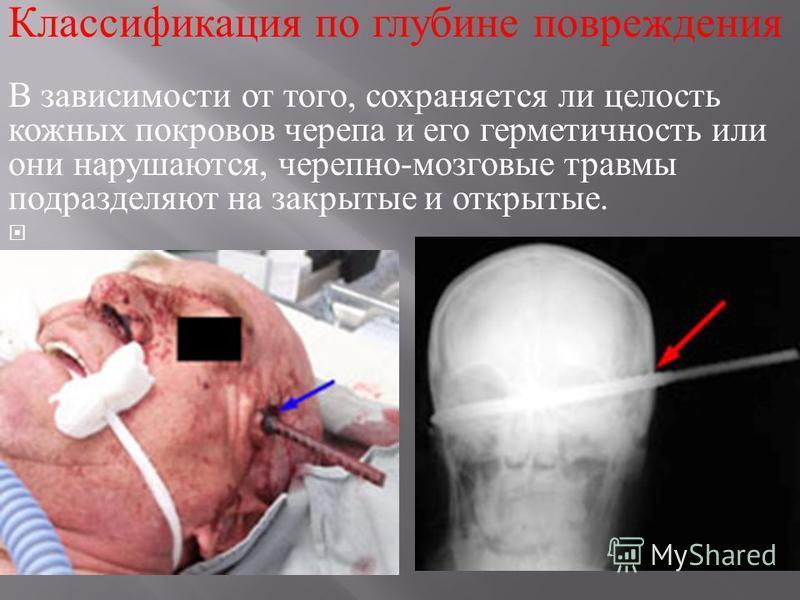 Классификация по глубине повреждения В зависимости от того, сохраняется ли целость кожных покровов черепа и его герметичность или они нарушаются, черепно - мозговые травмы подразделяют на закрытые и открытые.
