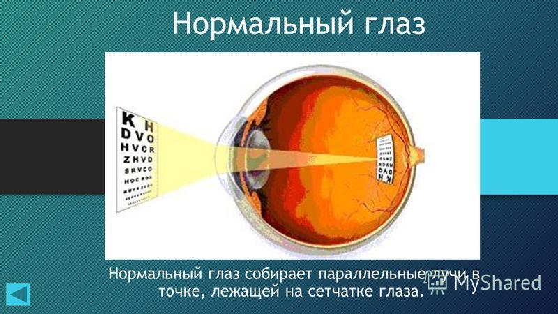 15 Нормальный глаз Нормальный глаз собирает параллельные лучи в точке, лежащей на сетчатке глаза.