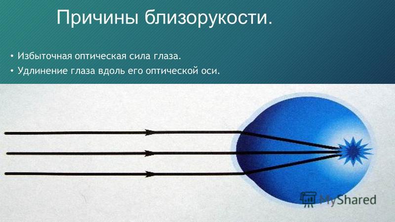 17 Причины близорукости. Избыточная оптическая сила глаза. Удлинение глаза вдоль его оптической оси.