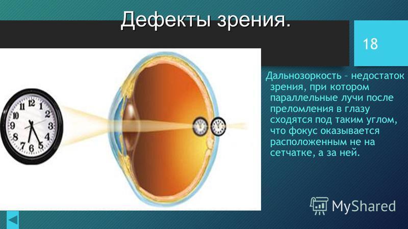 18 Дефекты зрения. Дальнозоркость – недостаток зрения, при котором параллельные лучи после преломления в глазу сходятся под таким углом, что фокус оказывается расположенным не на сетчатке, а за ней.