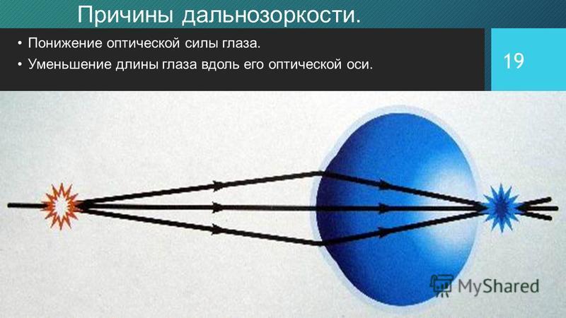 19 Причины дальнозоркости. Понижение оптической силы глаза. Уменьшение длины глаза вдоль его оптической оси.