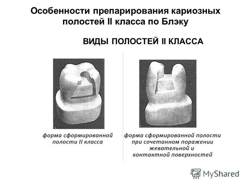 Особенности препарирования кариозных полостей II класса по Блэку ВИДЫ ПОЛОСТЕЙ II КЛАССА