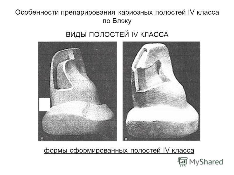 Особенности препарирования кариозных полостей IV класса по Блэку ВИДЫ ПОЛОСТЕЙ IV КЛАССА формы сформированных полостей IV класса