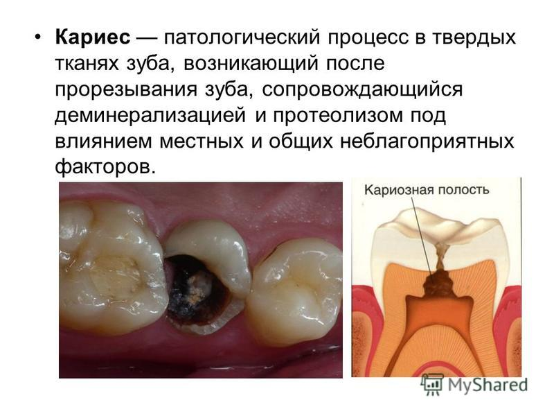 Кариес патологический процесс в твердых тканях зуба, возникающий после прорезывания зуба, сопровождающийся деминерализацией и протеолизом под влиянием местных и общих неблагоприятных факторов.