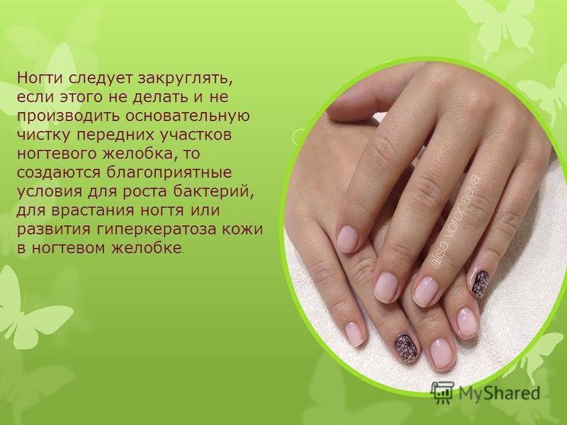 Ногти следует закруглять, если этого не делать и не производить основательную чистку передних участков ногтевого желобка, то создаются благоприятные условия для роста бактерий, для врастания ногтя или развития гиперкератоза кожи в ногтевом желобке.