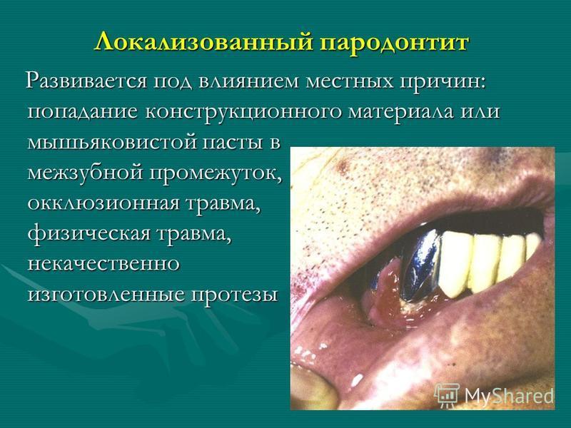 Локализованный пародонтит Развивается под влиянием местных причин: попадание конструкционного материала или мышьяковистой пасты в межзубной промежуток, окклюзионная травма, физическая травма, некачественно изготовленные протезы Развивается под влияни