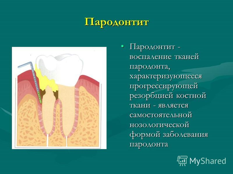 Пародонтит Пародонтит - воспаление тканей пародонта, характеризующееся прогрессирующей резорбцией костной ткани - является самостоятельной нозологической формой заболевания пародонта
