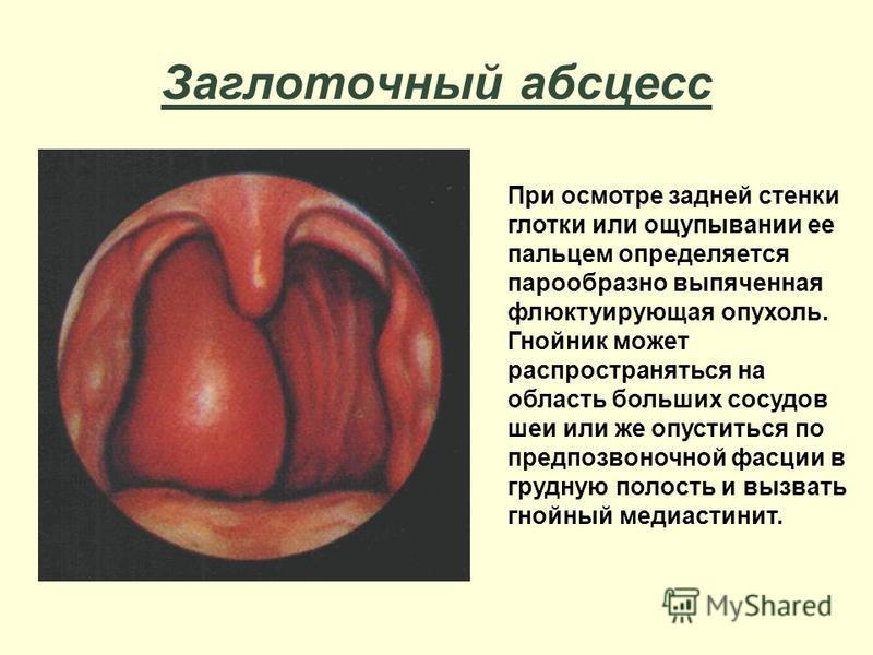Заглоточный абсцесс При осмотре задней стенки глотки или ощупывании ее пальцем определяется парообразно выпяченная флюктуирующая опухоль. Гнойник может распространяться на область больших сосудов шеи или же опуститься по предпозвоночной фасции в груд