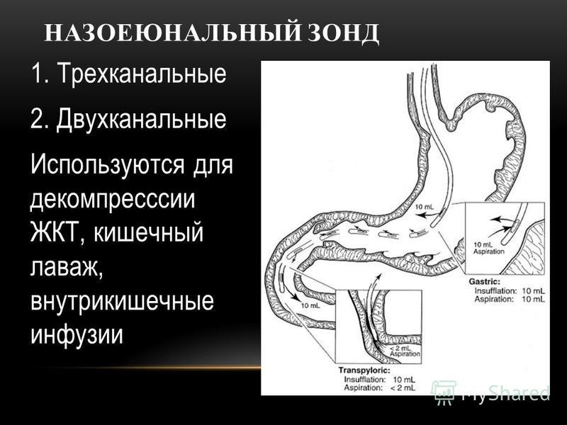 НАЗОЕЮНАЛЬНЫЙ ЗОНД 1. Трехканальные 2. Двухканальные Используются для декомпрессии ЖКТ, кишечный лаваж, внутрикишечные инфузии