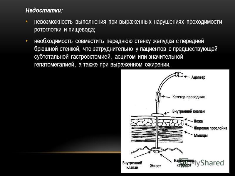 Недостатки: невозможность выполнения при выраженных нарушениях проходимости ротоглотки и пищевода; необходимость совместить переднюю стенку желудка с передней брюшной стенкой, что затруднительно у пациентов с предшествующей субтотальной гастроэктомие