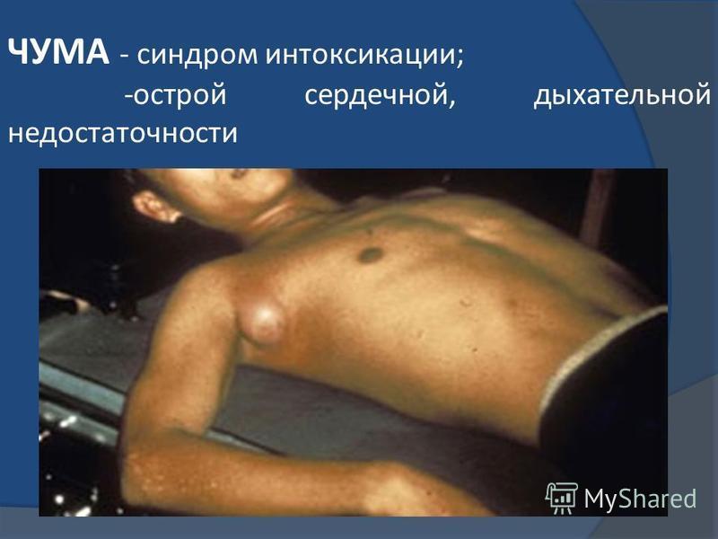 ЧУМА - синдром интоксикации; -острой сердечной, дыхательной недостаточности