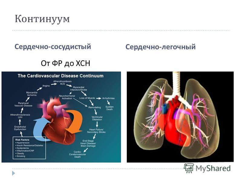 Континуум Сердечно - сосудистый Сердечно - легочный От ФР до ХСН