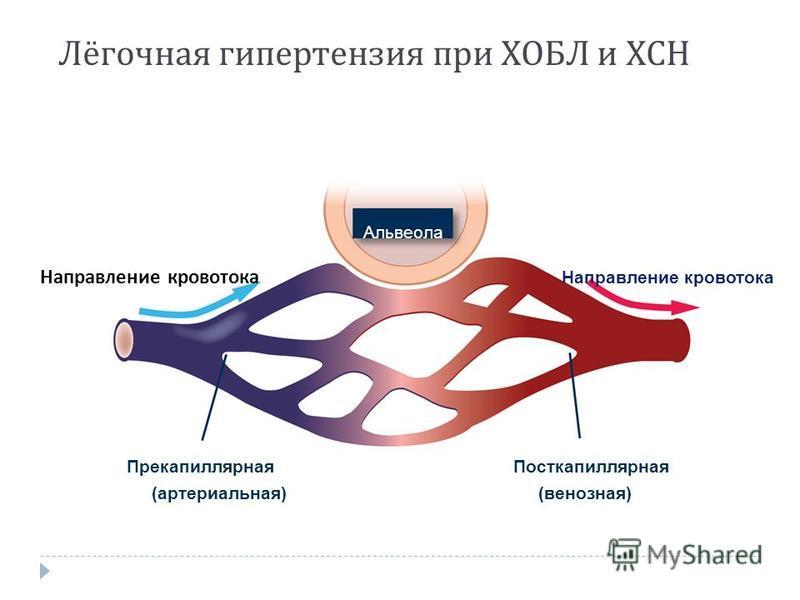 Лёгочная гипертензия при ХОБЛ и ХСН Направление кровотока Альвеола Посткапиллярная (венозная) Прекапиллярная (артериальная)