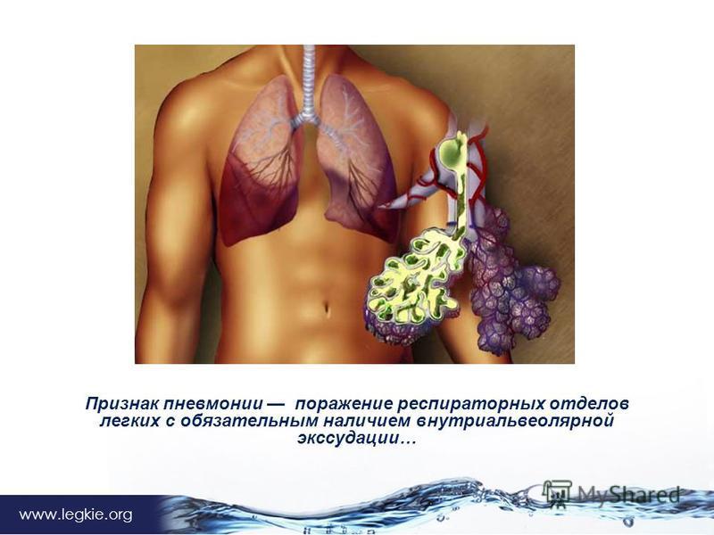 www.legkie.org Признак пневмонии поражение респираторных отделов легких с обязательным наличием внутри альвеолярной экссудации…