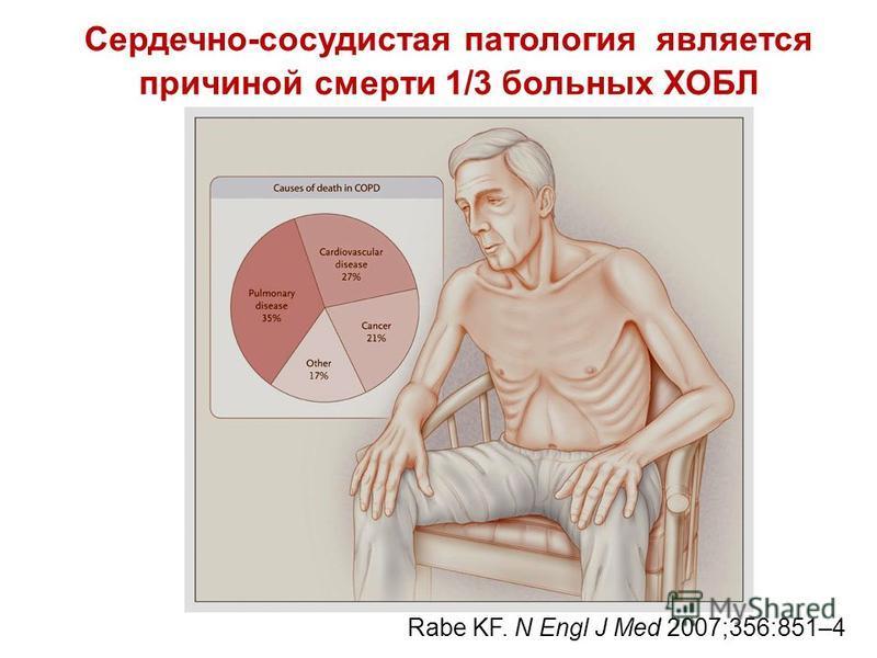Сердечно-сосудистая патология является причиной смерти 1/3 больных ХОБЛ Rabe KF. N Engl J Med 2007;356:851–4