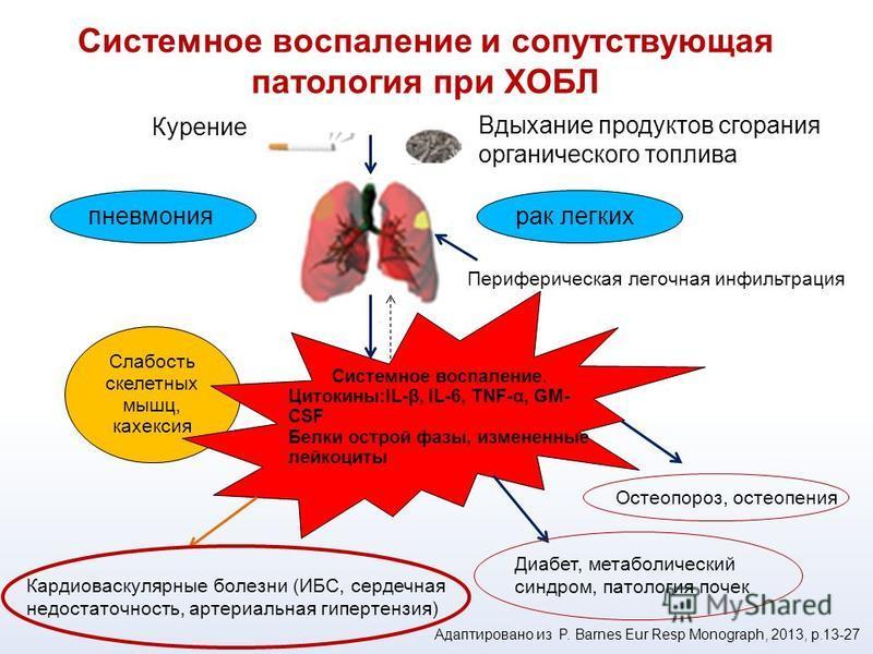 Курение Вдыхание продуктов сгорания органического топлива пневмония рак легких Слабость скелетных мышц, кахексия Системное воспаление. Цитокины:IL-β, IL-6, TNF-α, GM- CSF Белки острой фазы, измененные лейкоциты Кардиоваскулярные болезни (ИБС, сердечн