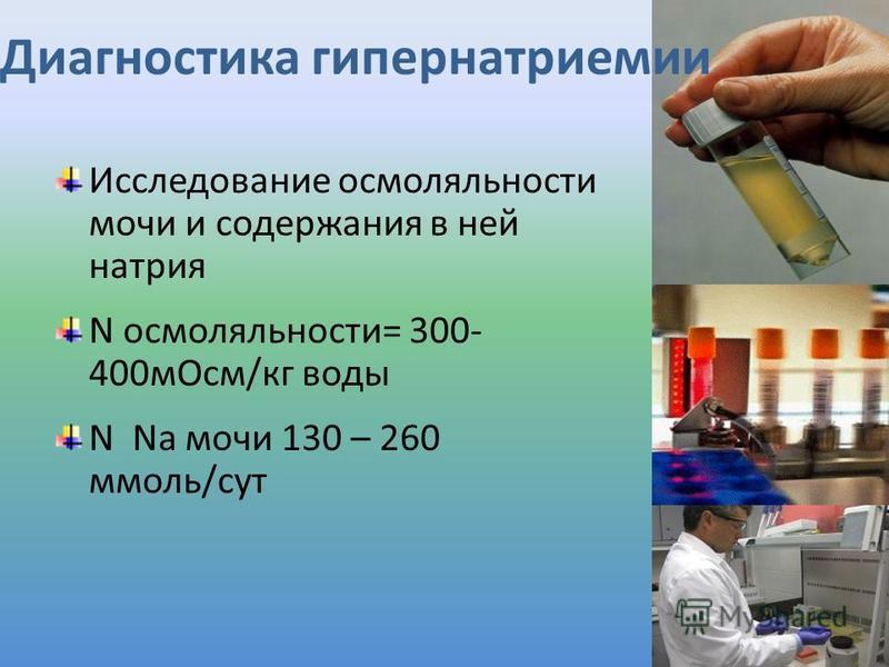 Диагностика гипернатриемии Исследование осмоляльности мочи и содержания в ней натрия N осмоляльности= 300- 400 м Осм/кг воды N Na мочи 130 – 260 ммоль/сут