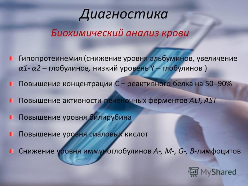 Диагностика Биохимический анализ крови Гипопротеинемия (снижение уровня альбуминов, увеличение α1- α2 – глобулинов, низкий уровень Υ – глобулинов ) Повышение концентрации С – реактивного белка на 50- 90% Повышение активности печеночных ферментов ALT,