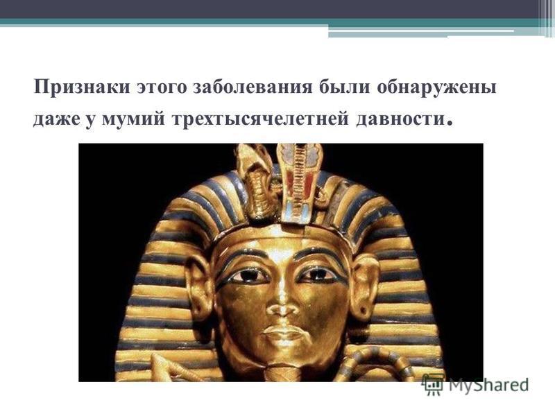 Признаки этого заболевания были обнаружены даже у мумий трехтысячелетней давности.