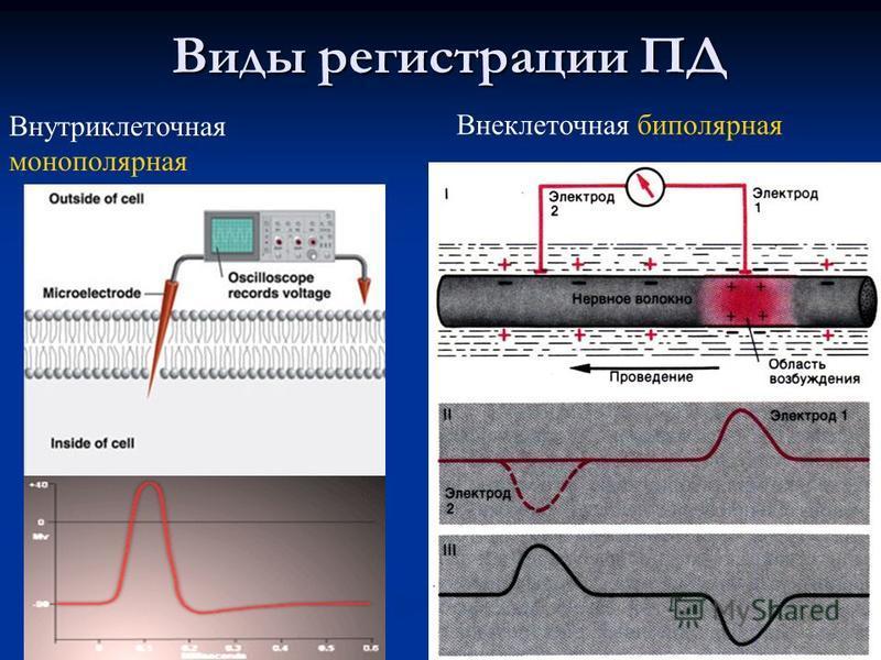 31 Виды регистрации ПД Внутриклеточная монополярная Внеклеточная биполярная