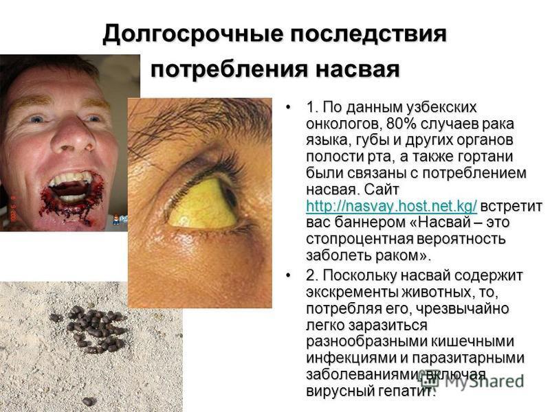 Долгосрочные последствия потребления насвая 1. По данным узбекских онкологов, 80% случаев рака языка, губы и других органов полости рта, а также гортани были связаны с потреблением насвая. Сайт http://nasvay.host.net.kg/ встретит вас баннером «Насвай