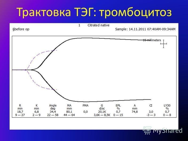 Трактовка ТЭГ: тромбоцитоз
