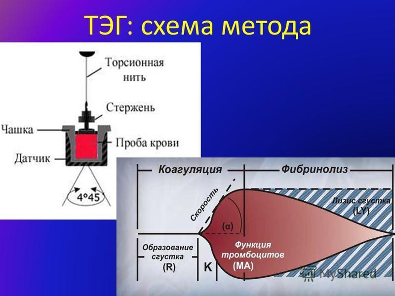 ТЭГ: схема метода