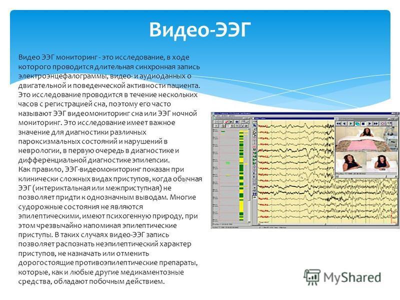 Видео-ЭЭГ Видео ЭЭГ мониторинг - это исследование, в ходе которого проводится длительная синхронная запись электроэнцефалограммы, видео- и аудиоданных о двигательной и поведенческой активности пациента. Это исследование проводится в течение нескольки