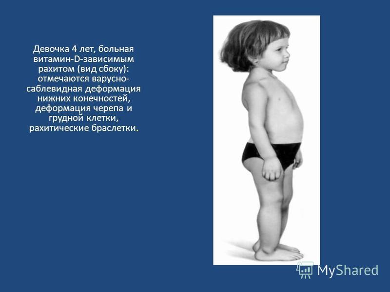 Девочка 4 лет, больная витамин-D-зависимым рахитом (вид сбоку): отмечаются варусной- саблевидная деформация нижних конечностей, деформация черепа и грудной клетки, рахитические браслетки.