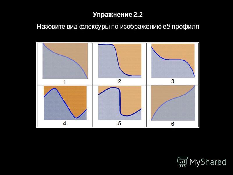 Упражнение 2.2 Назовите вид флексуры по изображению её профиля