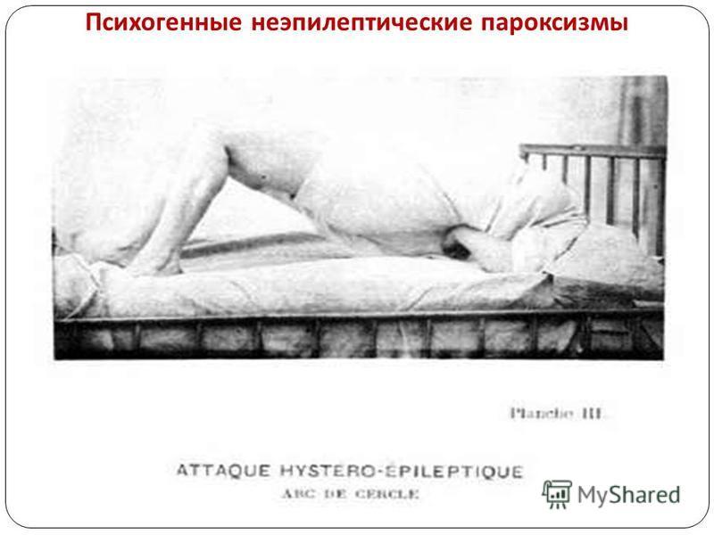 Психогенные неэпилептические пароксизмы