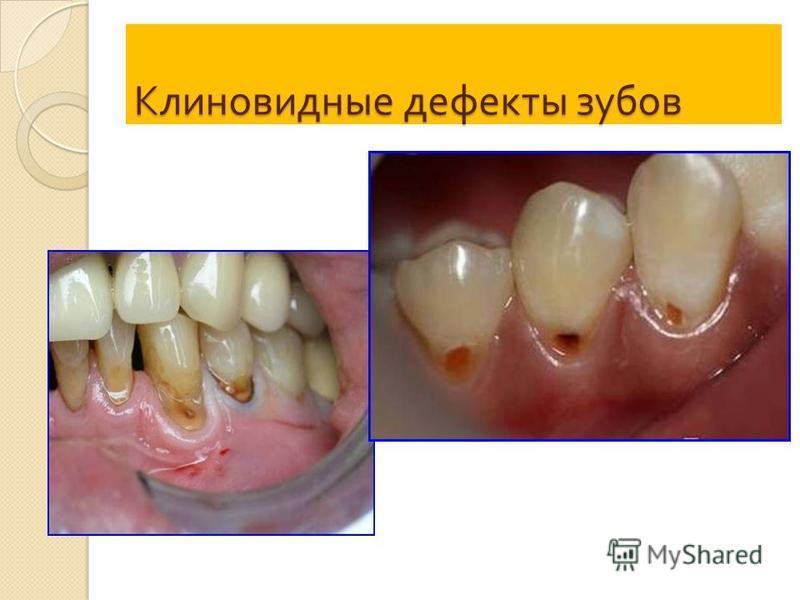 Клиновидные дефекты зубов