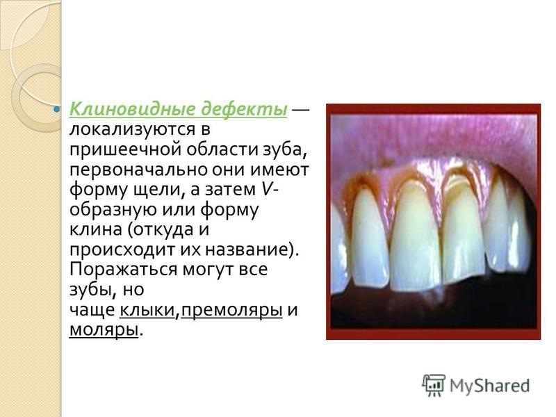 Клиновидные дефекты локализуются в пришеечной области зуба, первоначально они имеют форму щели, а затем V- образную или форму клина ( откуда и происходит их название ). Поражаться могут все зубы, но чаще клыки, премоляры и моляры. Клиновидные дефекты