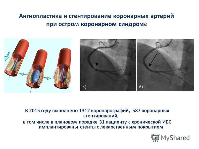 Ангиопластика и стентирование коронарных артерий при остром коронарном синдроме В 2015 году выполнено 1312 коронарографий, 587 коронарных стентирований, в том числе в плановом порядке 31 пациенту с хронической ИБС имплантированы стенты с лекарственны