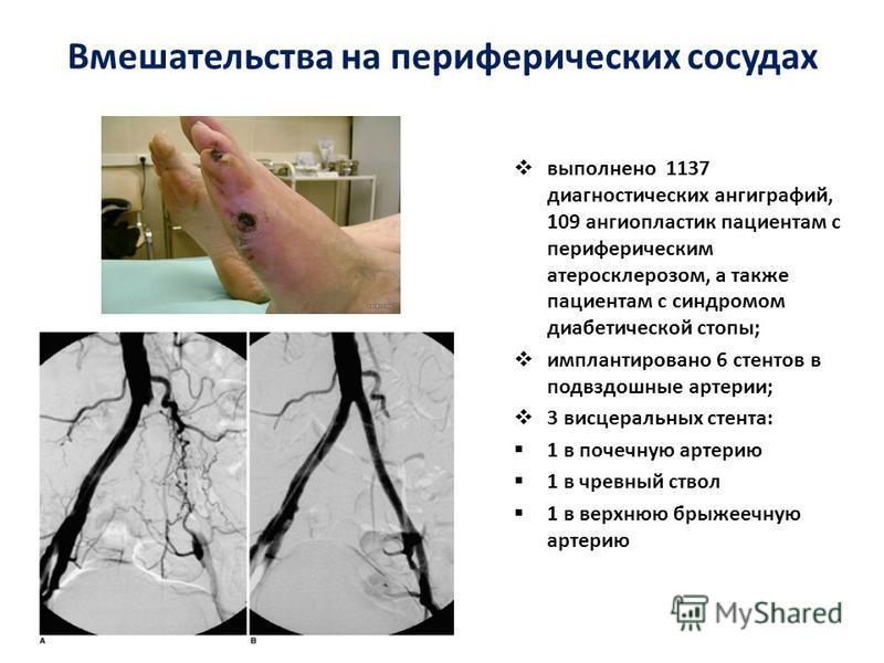 Вмешательства на периферических сосудах выполнено 1137 диагностических ангиографий, 109 ангиопластика пациентам с периферическим атеросклерозом, а также пациентам с синдромом диабетической стопы; имплантировано 6 стентов в подвздошные артерии; 3 висц