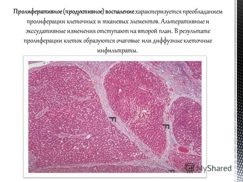 Пролиферативное (продуктивное) воспаление характеризуется преобладанием пролиферации клеточных и тканевых элементов. Альтеративные и экссудативные изменения отступают на второй план. В результате пролиферации клеток образуются очаговые или диффузные