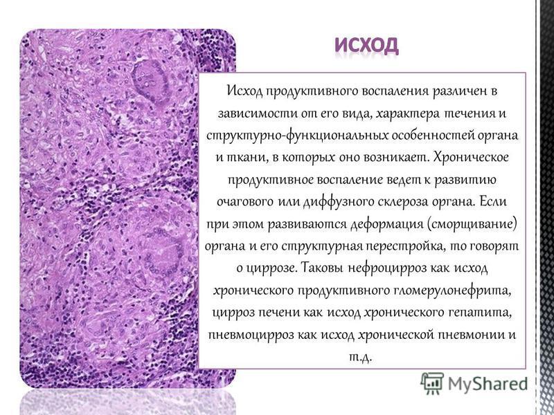 Исход продуктивного воспаления различен в зависимости от его вида, характера течения и структурно-функциональных особенностей органа и ткани, в которых оно возникает. Хроническое продуктивное воспаление ведет к развитию очагового или диффузного склер