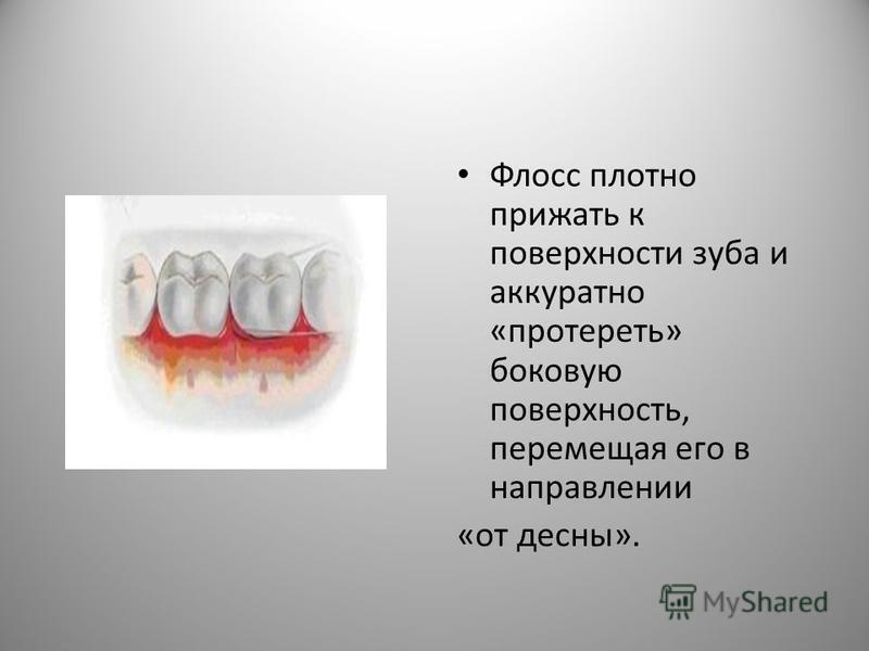 Флосс плотно прижать к поверхности зуба и аккуратно «протереть» боковую поверхность, перемещая его в направлении «от десны».